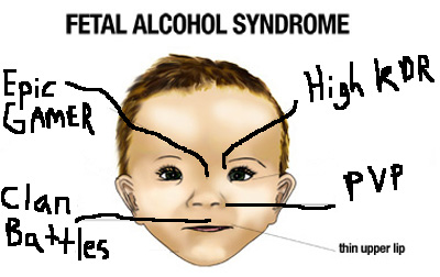 fetal-alcohol-syndrom5.jpg